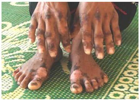 皮肤病_越南爆发离奇皮肤病 已造成19人身亡