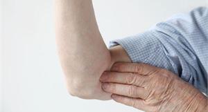 類風濕性關節炎 小分子口服藥新選
