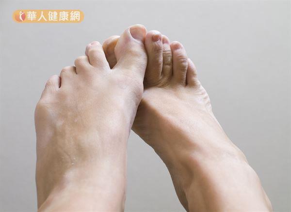 """霉菌感染发生于在脚部的就称为""""足癣(香港脚)"""";发生在指甲/趾甲的就称为「甲癣(灰指甲)」。"""