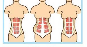 產後運動消肚關鍵:腹直肌分離程度