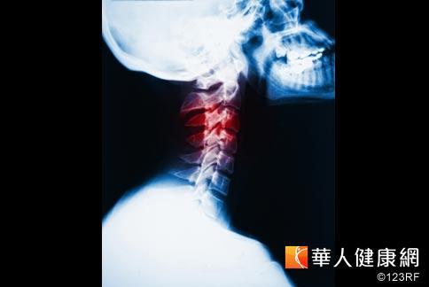 脊椎 強直 炎 性