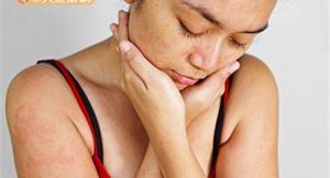 泰國草藥治皮膚病?研究有新發現