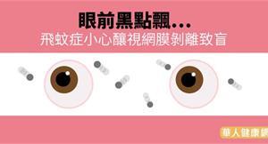 眼前黑點飄…飛蚊症小心釀視網膜剝離致盲