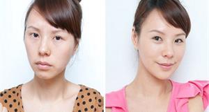 巴掌臉美女再進化 微整型拯救瘦瘦臉