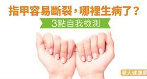 指甲容易斷裂,哪裡生病了?3點自我檢測