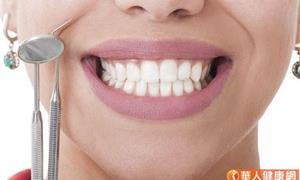 根管治療後牙黑黑 「齒內美白」讓白從裡透出來
