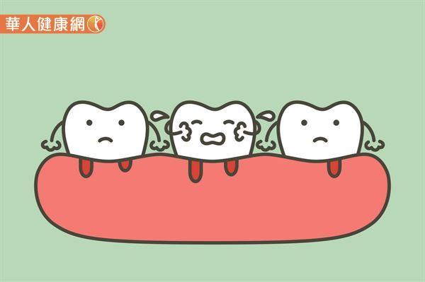 醫學研究已經發現,牙周病是糖尿病的常見慢性併發症之一。