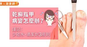 乾癬指甲病變怎麼辦?謹記:少碰水、清潔劑3原則