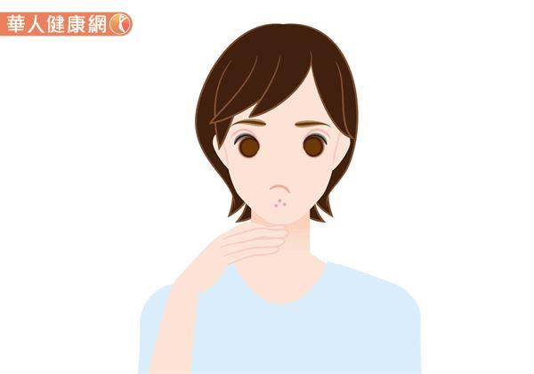 想要改善粉刺問題,日常保養有5大要點要注意。