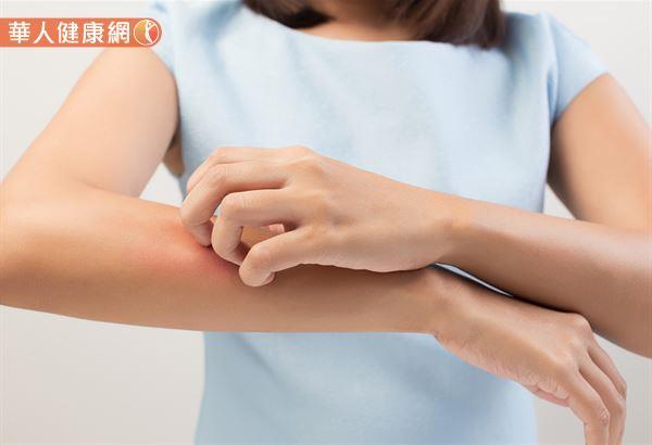 乾癬皮膚炎可以分為5大型:斑塊狀、滴狀、皮褶型、膿皰型與紅皮症。