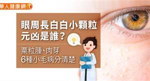 眼周長白白小顆粒,元凶是誰?粟粒腫、肉芽6種小毛病分清楚