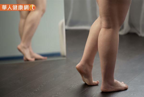 討人厭腿部水腫、發脹問題,總讓你困擾不已?不敢穿著裙裝、短褲,就怕粗壯的小腿原形畢露?