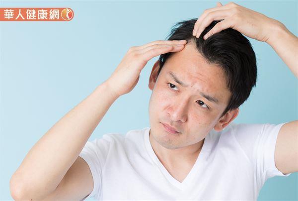 雄性禿的表現形式為,前額兩側的髮線逐漸稀疏、往後退,或伴隨頭頂處的頭髮變細、變稀疏等。