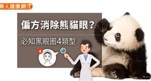偏方消除熊貓眼?必知黑眼圈4類型