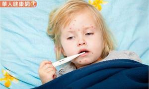 旅日慎防高傳播力麻疹?出現這3症狀當心