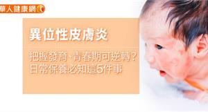 異位性皮膚炎把握發育、青春期可逆轉?日常保養必知這5件事