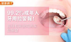 99.2%成年人牙周拉警報!齒縫有無徹底清潔是關鍵