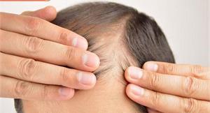 壓力、疲勞容易引起掉髮?遠離雄性禿試試看新方法