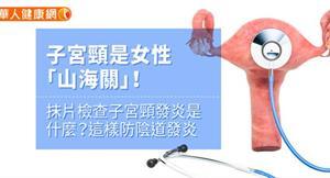 子宮頸是女性「山海關」!抹片檢查子宮頸發炎是什麼?這樣防陰道發炎