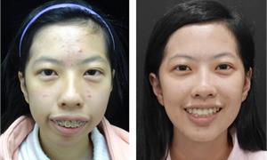 20妙齡女飽受暴牙、顏面歪斜苦惱 顳顎關節整合治療找回自信