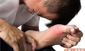 我的痛風需要開刀嗎?醫師解答常見治療方式