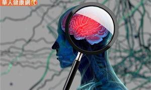 你的大腦壽命在縮短嗎?來做看看吧!大腦壽命檢查清單