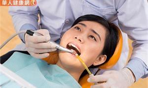 根管治療失敗,面臨拔牙命運!顯微根管治療,保住珍貴的自然牙
