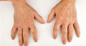 關節扭曲、疼痛好難受?中醫教你做到3件事,緩解類風濕性關節炎