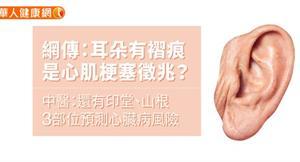 網傳:耳朵有褶痕是心肌梗塞徵兆?中醫:還有印堂、山根3部位預測心臟病風險