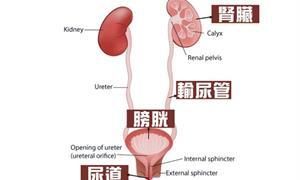頻尿、腰痠別輕忽!醫師揭:尿路結石3大迷思、5大預防原則