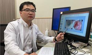 大腸瘜肉超過1公分恐癌化 內視鏡剝離術完整切除