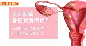 子宮肌瘤會把寶寶擠掉?孕期少碰這些食物防止肌瘤持續長大