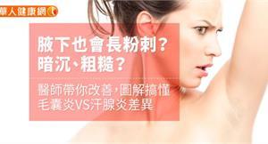 腋下也會長粉刺?暗沉、粗糙?醫師帶你改善 圖解搞懂毛囊炎VS汗腺炎差異
