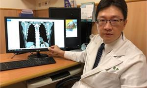 婦咳血10年治不好 竟是罹患「極為罕見」游離肺,胃血管闖進肺臟惹禍
