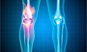 退化性關節炎與肌腱炎患者的治療新選擇 羊膜基質