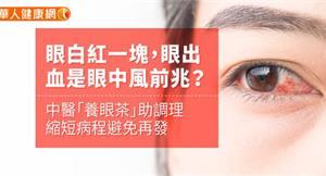 眼白紅一塊,眼出血是中風前兆?中醫「養眼茶」助調理、縮短病程避免再發