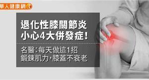 退化性膝關節炎小心骨鬆4大併發症!名醫:每天做這1招鍛鍊肌力,膝蓋不衰老