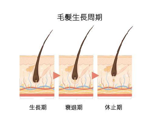 身體頭髮毛囊生長週期可分為生長期、衰退期與休止期。(圖片提供/洪志鵬醫學博士)
