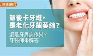 飯後卡牙縫,是老化牙齦萎縮?還是牙周病作祟?牙醫師來解答