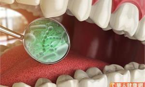 不只引起牙周病!研究發現:口腔內的「具核梭桿菌」細菌竟和大腸癌有關