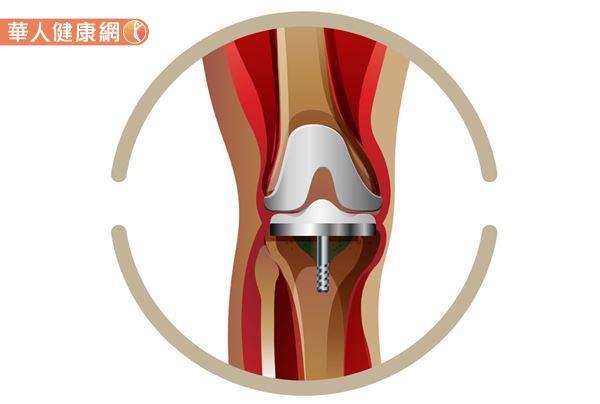 至於退化性膝關節進展到什麼地步,就有考慮置換人工關節的必要呢?林郁智醫師進一步解釋道,值得慶幸的是絕大多數人不太會一開始就需要考量置換人工關節這件事。