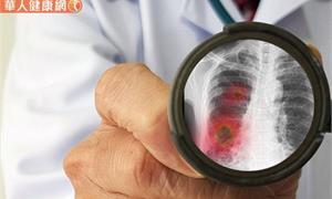 防治新冠肺炎,身暖體氣足是痊癒關鍵!中醫12字箴言、9大對策助防疫
