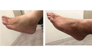 腳是第二心臟!鞋襪不合經常摩擦,小心腳臭、雞爪腳、香港腳、灰指甲跟著來!