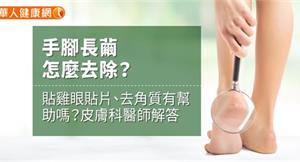 手腳長繭怎麼去除?貼雞眼貼片、去角質有幫助嗎?皮膚科醫師解答