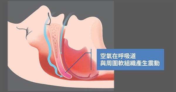 空氣進入鼻腔時會與呼吸道周圍軟組織產生震動而發出聲響,呼吸道越窄,鼾聲就會越大。