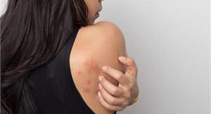 蕁麻疹分急性和慢性?是過敏還是蚊蟲叮咬?皮膚科醫師帶你一次看懂破解迷思
