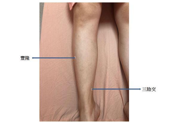 中醫調脾胃除濕氣消水腫的穴位埋線,如:豐隆。(圖片提供/臺北市立聯合醫院和平婦幼院區)