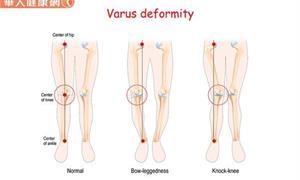 O型腿不美觀覺得好困擾?常做大腿內側股薄肌伸展操,緩解僵硬肌肉助改善