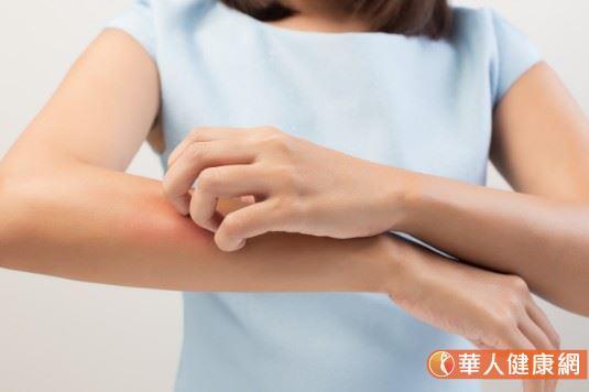 以異位性皮膚炎來說,是最常見的濕疹,主要好發在小朋友身上,通常2歲之前發病,但是青少年、老人也都可能有此困擾,不同年紀的症狀表現就不一樣,可以說全台大約有一百萬人都是異位性皮膚炎的患者。