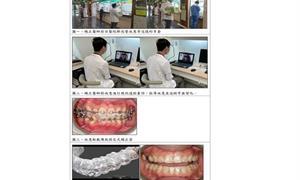 疫情下,齒顎矯正也能遠距醫療!北榮隱形牙套郵寄到宅
